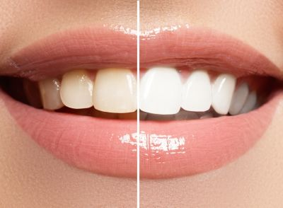Difference Between Teeth Cleaning and Teeth Bleaching