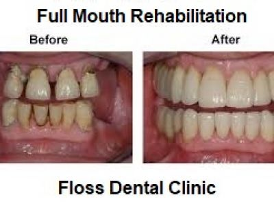 Full Mouth Rehabilitation In Noida, Delhi NCR