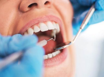 Most Common Dental Problems in India