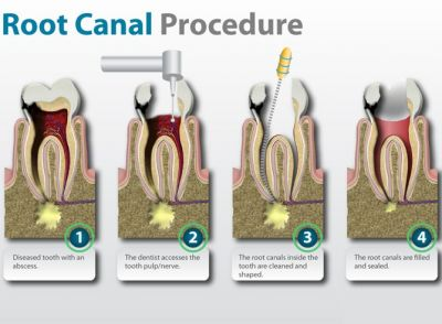 Single Sitting Root Canal Treatment