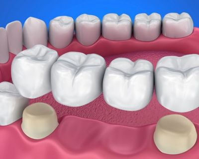 Dentures, Crowns and Bridges