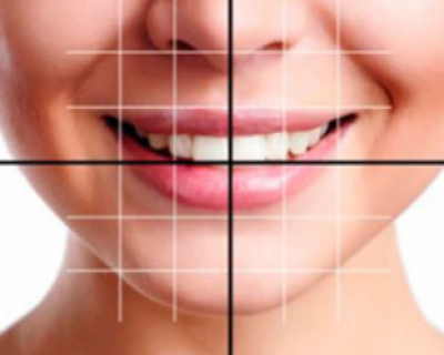Aesthetic Dentistry (Smile Designing)